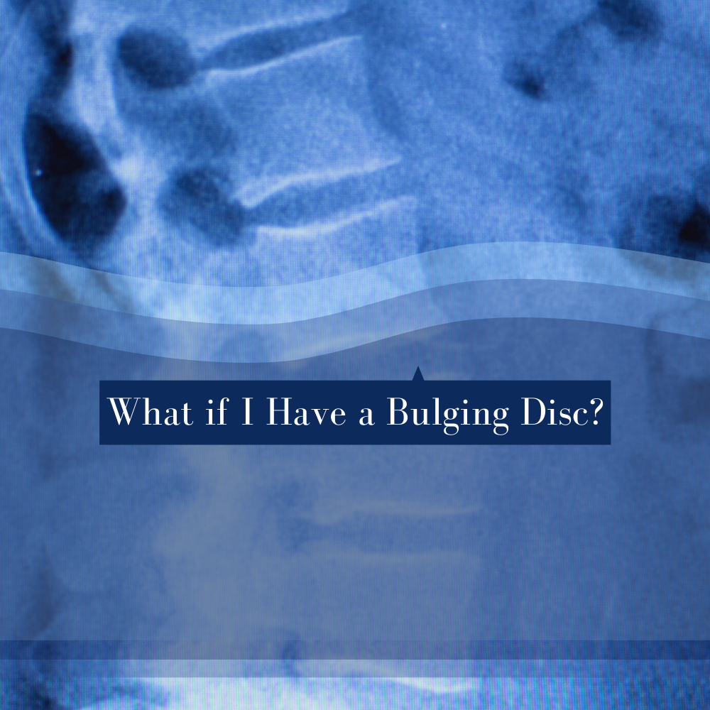 """What if I Have a Bulging Disc?"""